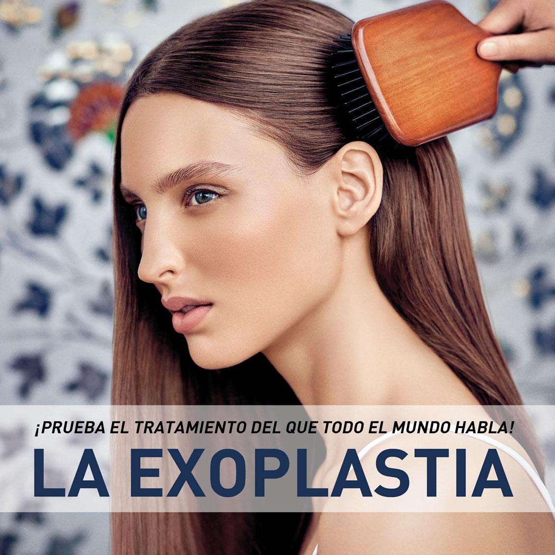 Exoplastia
